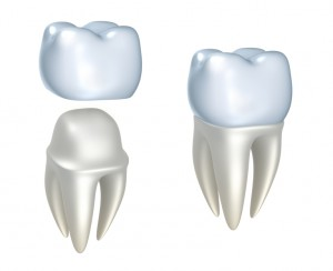 All-ceramic restorations from your cosmetic dentist in Stillwater Ranch.