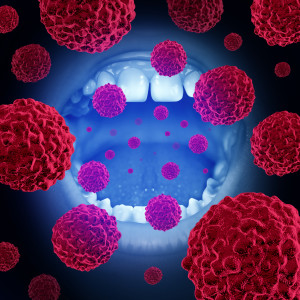 Oral cancer can be deadly because it's often caught too late, so see your dentist in Helotes for regular screenings to save your smile – and your life.
