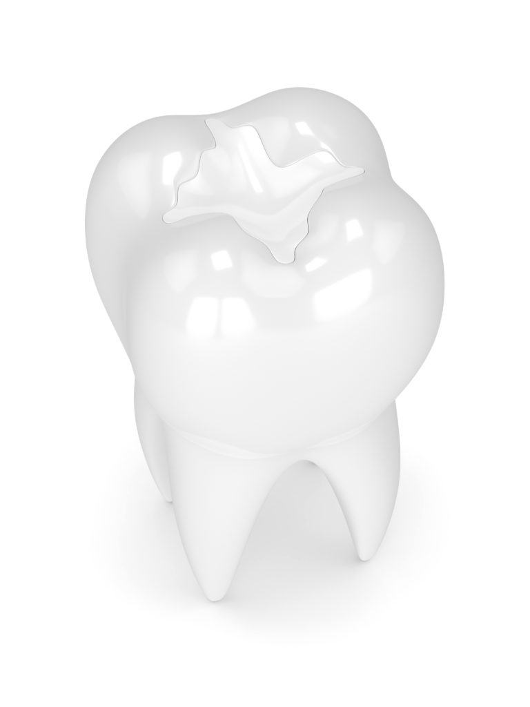 3D model of a tooth with a sealant