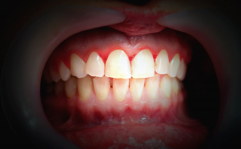 an up-close look at a person's teeth and red gums